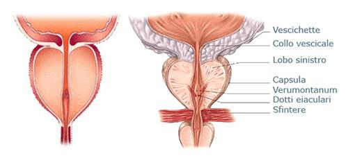 Ipertrofia Prostatica sintomi [Sicurocialis.com]